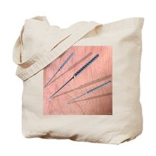 Acupuncture needles Tote Bag