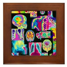 Assortment of coloured X-rays and body Framed Tile
