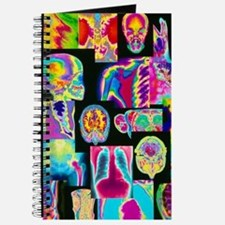 Assortment of coloured X-rays and body sca Journal