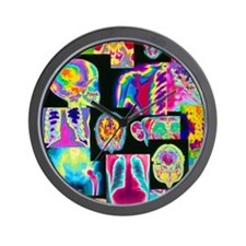 Assortment of coloured X-rays and body  Wall Clock