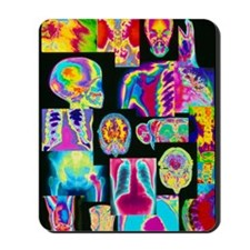 Assortment of coloured X-rays and body s Mousepad