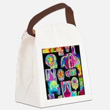 Assortment of coloured X-rays and Canvas Lunch Bag