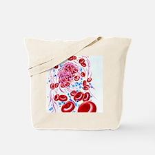 Illustration of a dissolving blood clot ( Tote Bag