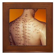 Acupuncture model Framed Tile