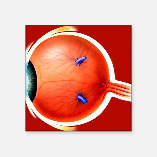 """Human eye Square Sticker 3"""" x 3"""""""