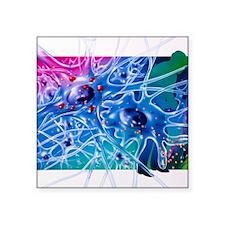 "Artwork of Parkinson's dise Square Sticker 3"" x 3"""