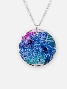 Artwork of Parkinson's disea Necklace