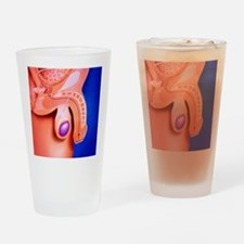Artwork showing a vasectomy operati Drinking Glass