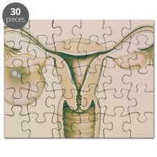 Artwork showing large ovarian cyst Puzzle
