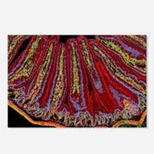 Small intestine villi, se Postcards (Package of 8)