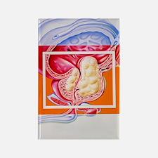 Benign prostatic hyperplasia Rectangle Magnet