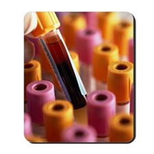Blood sample Mousepad