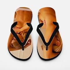 Breast self-examination: woman palpates Flip Flops