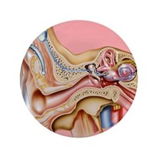 """Cochlear implant, artwork 3.5"""" Button"""