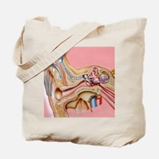 Cochlear implant, artwork Tote Bag