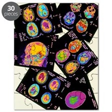 Coloured CT scans of the brain on a light b Puzzle