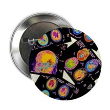 "Coloured CT scans of the brain on a l 2.25"" Button"