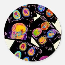 Coloured CT scans of the brain on Round Car Magnet