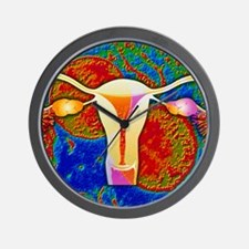 Chlamydia infection: bacteria Wall Clock