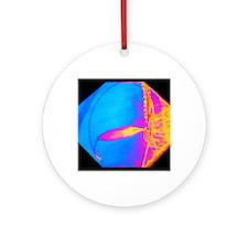 Coloured X-ray of cardiac angioplas Round Ornament