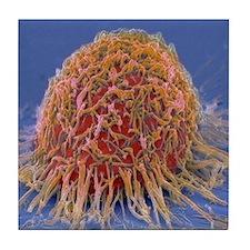 Cervical cancer cell, SEM Tile Coaster