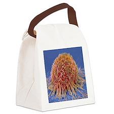 Cervical cancer cell, SEM Canvas Lunch Bag