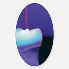 Computer graphic of a dental laser  Decal