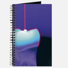 Computer graphic of a dental laser hitting Journal