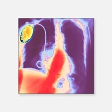 "Coloured chest X-ray showin Square Sticker 3"" x 3"""