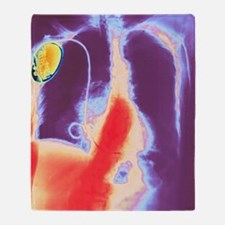 Coloured chest X-ray showing heart p Throw Blanket