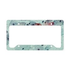 Cervical smear containing bac License Plate Holder