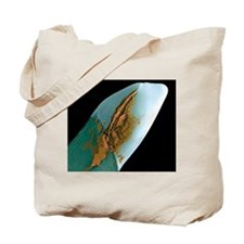 Coloured SEM of a tooth with a dental cro Tote Bag