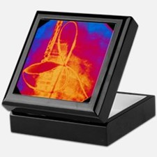 Coloured X-ray of cardiac angioplasty Keepsake Box