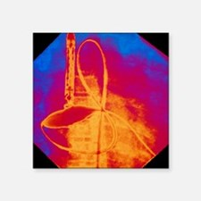 "Coloured X-ray of cardiac a Square Sticker 3"" x 3"""
