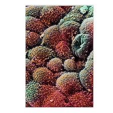 Coloured SEM of cancer ce Postcards (Package of 8)