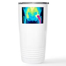 Coloured X-ray of an artificial Travel Mug