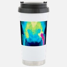 Coloured X-ray of an artificial Travel Mug