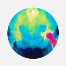 Coloured X-ray of an artificial hip Round Ornament