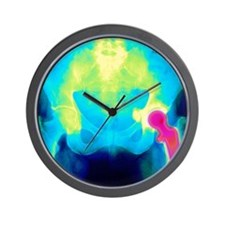 Coloured X-ray of an artificial hip joi Wall Clock