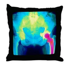 Coloured X-ray of an artificial hip j Throw Pillow