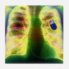 Coloured X-ray of chest showing heart Tile Coaster