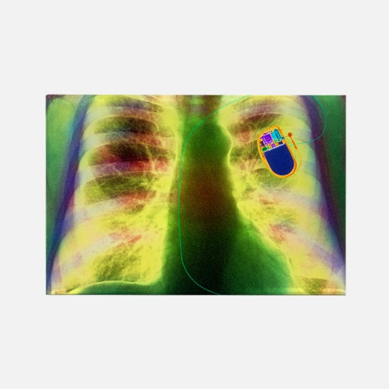 Coloured X-ray of chest showing h Rectangle Magnet