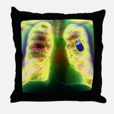 Coloured X-ray of chest showing heart Throw Pillow