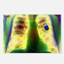 Coloured X-ray of chest s Postcards (Package of 8)