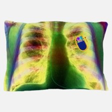 Coloured X-ray of chest showing heart  Pillow Case