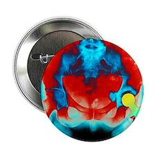 "Coloured X-ray of an artificial hip j 2.25"" Button"