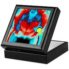 Coloured X-ray of an artificial hip j Keepsake Box