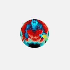 Coloured X-ray of an artificial hip jo Mini Button