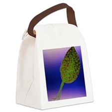 TEM of Trichomonas vaginalis Canvas Lunch Bag