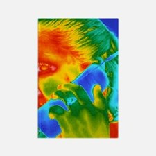 Telephone thermogram Rectangle Magnet